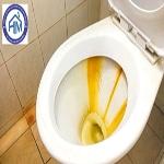 Dịch vụ tẩy vết cáu cặn ố vàng trong nhà vệ sinh tại Hà Nội. Chuyên nghiệp-Sạch bóng. Gọi ngay: 0962.63.9779